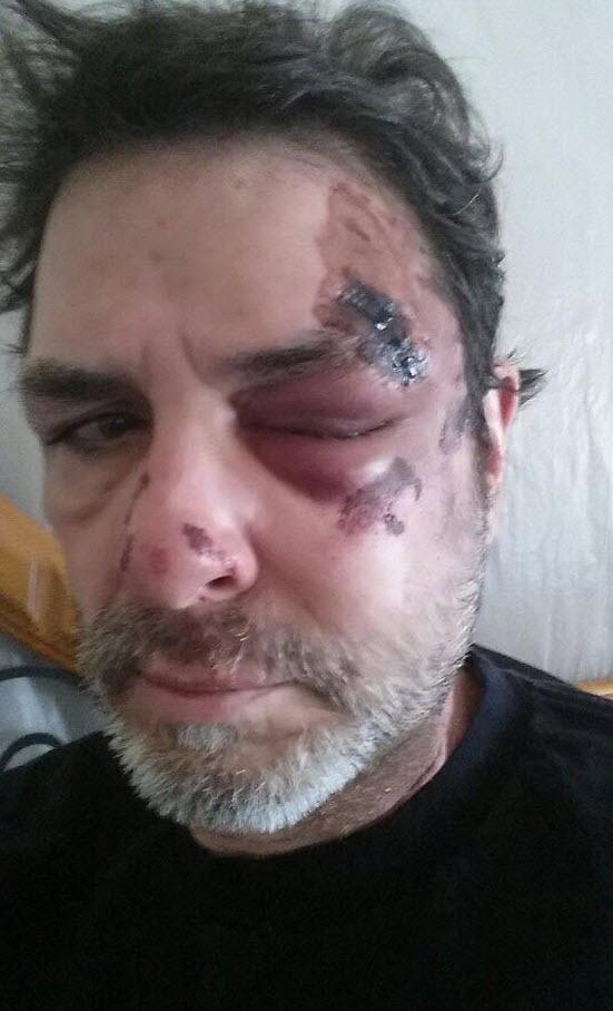 Evil Dick Donato Head Injury